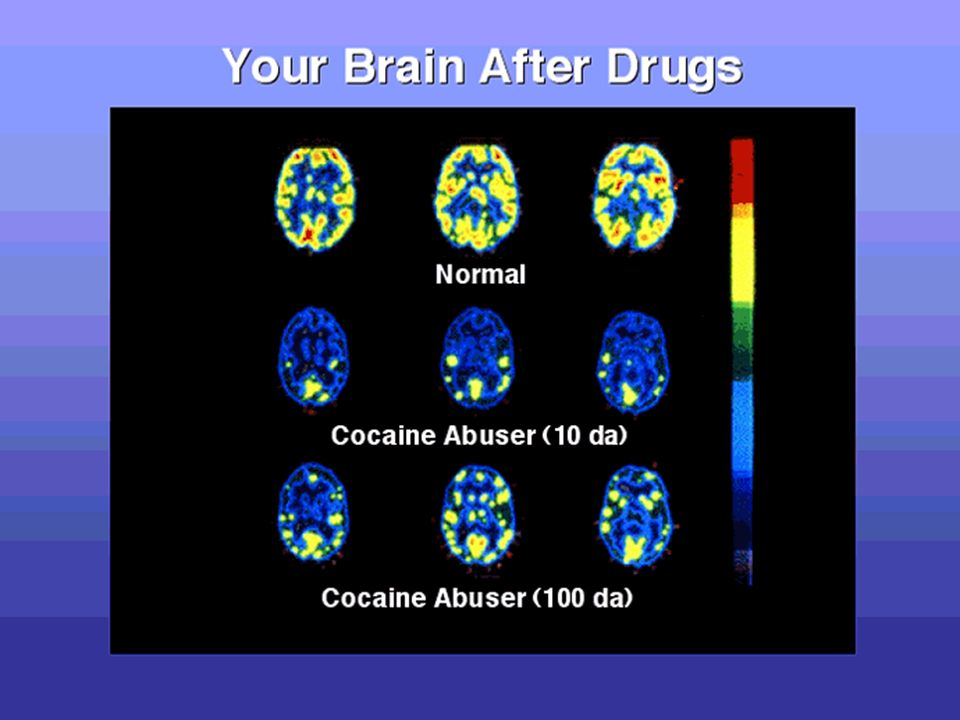 How does cocaine work? 1